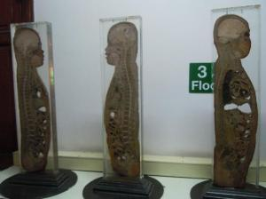 siriraj-medical-museum