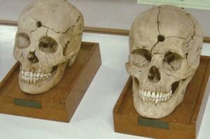 skulls siriraj